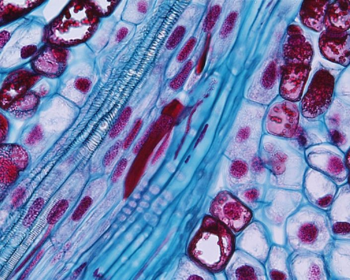 Close-up of pine vascular trace shown in image to the left. From left to right in this trace would be protoxylem, procambium, and protophloem. Image by Dr. Paul J Schulte (University of Nevada). https://faculty.unlv.edu/schulte/Anatomy/Stems/Stems.html